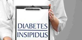 diabetes insipidus symptoms